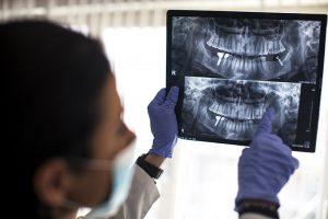 Implant Dentist Dr Dan Sullivan Santa Rosa Dentist